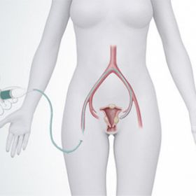 Save Yourself from the Side-effects of Hysterectomy by UFE